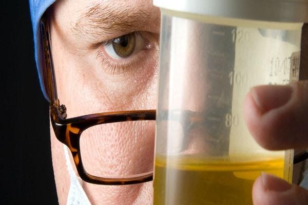 Urine Drug Test At Workplace