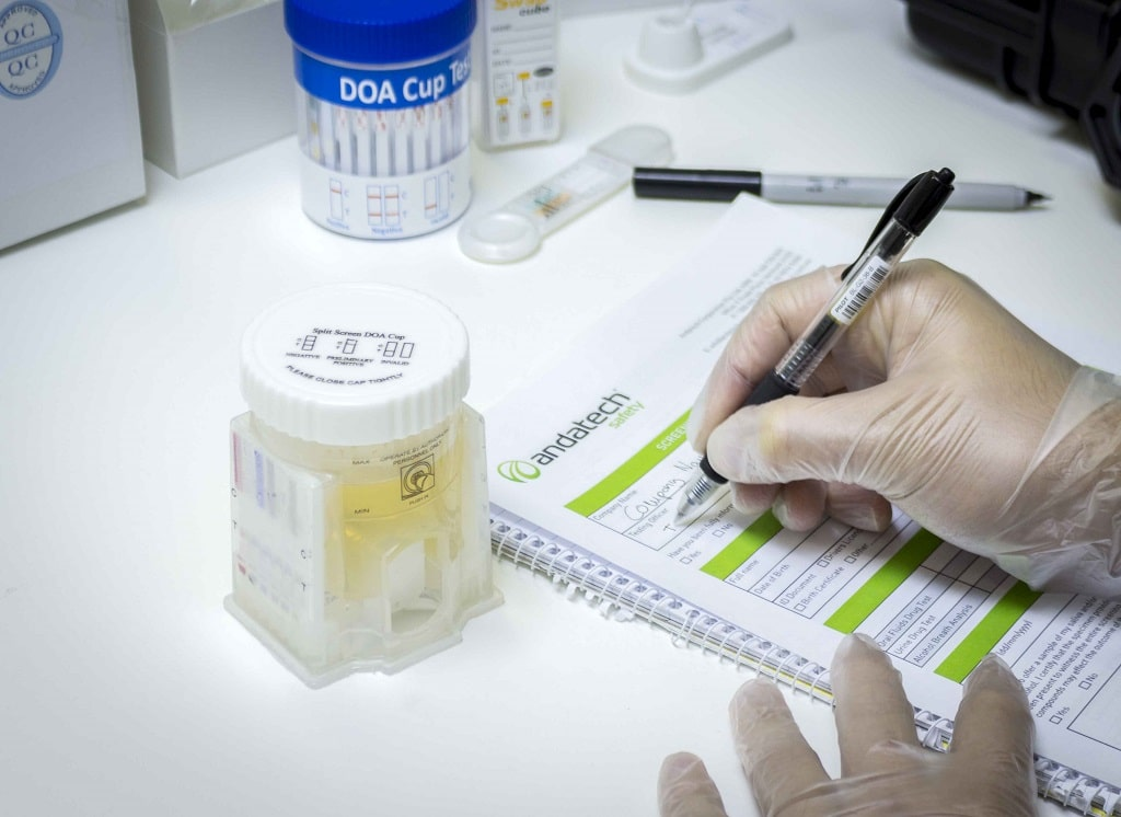 Important Tips For Dealing With Marijuana Drug Testing
